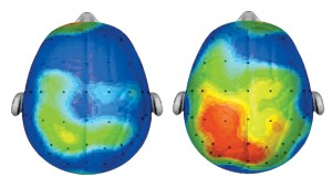Scanner cerveau - source dr. charles h. hillman, universite illinois -urbana-champaign